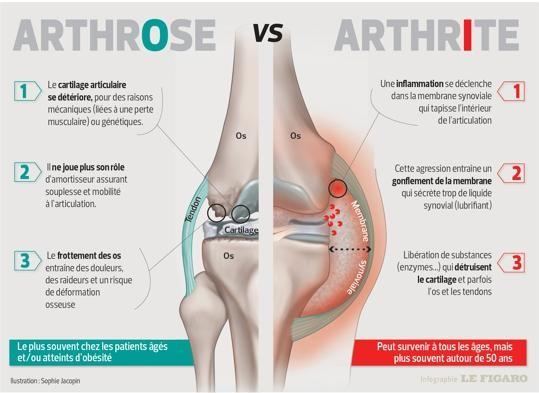 L'arthrite de Lyme